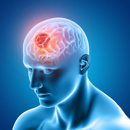 Brain Stimulation Therapies-Depression Treatment